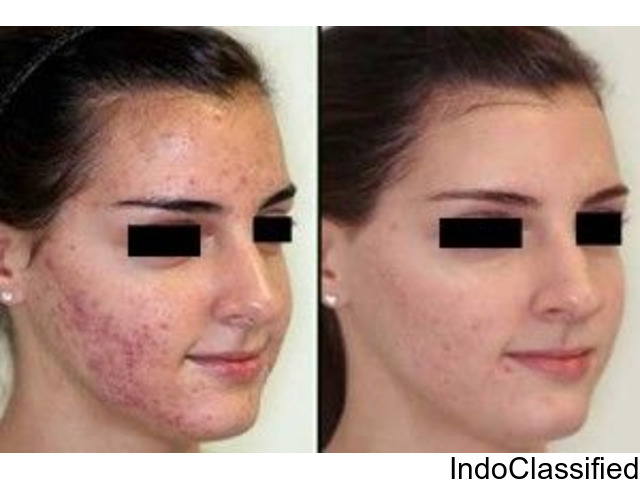 Acne Specialist Doctor by Sculpt India