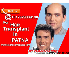Best Hair Wig Clinic in Patna | Hair Patch Solution in Patna - Hi Handsome