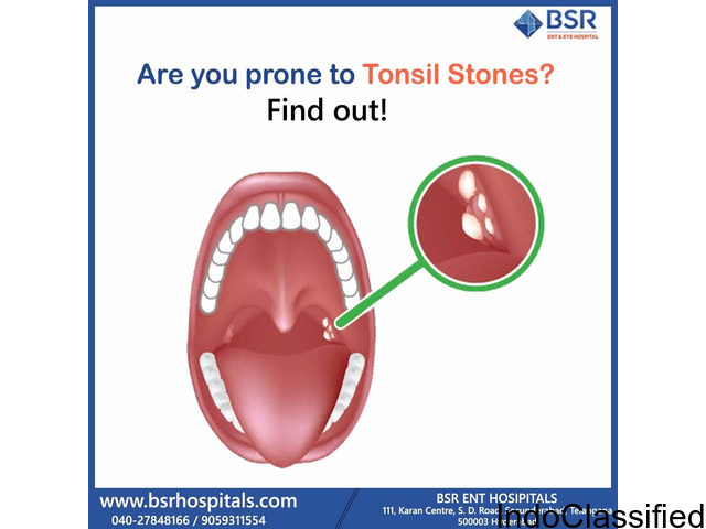 Tonsillitis: Causes, Symptoms and Treatment | Book an Appointment
