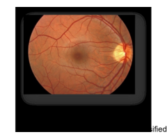 Retina Specialist Doctor in Delhi - Goyal Eye