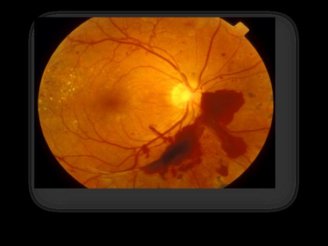 Retina Specialist Doctor in Delhi - Goyal Eye