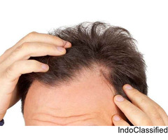 hair transplant in hyderabad | hair transplant services