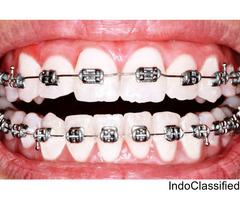 dentist in jaipur dental clinic in jaipur dental implant in jaipur root canal treatment In jaipur