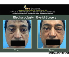 Get Low Cost Blepharoplasty Surgery In India