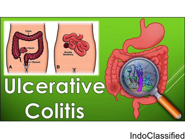 Successful Treatment for Ulcerative Colitis in India by Dr. Harish Verma