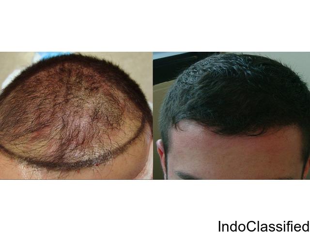 Hair Transplantation Service in Hyderabad.