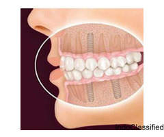 Dental Implants Treatment in Your Budget in Ahmedabad