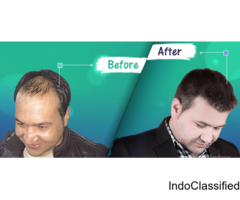 Perfect-i Hair transplant at Medlinks