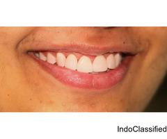 Best Endodontist in Jaipur