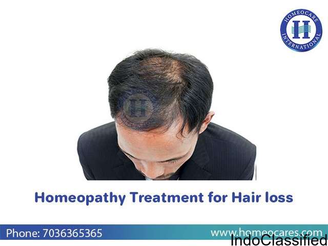 Worried with hair loss? Get cured with Homeopathy in Masab Tank