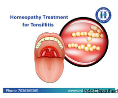 Homeopathy Treatment for Tonsillitis in ongole