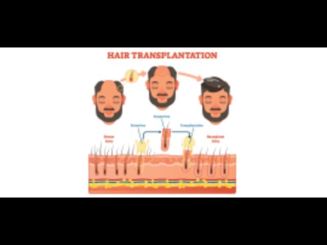 FUE Hair Transplant in Delhi - MedLinks