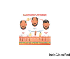FUE Hair Transplant in Delhi - MedLinks