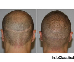 Hair Transplant Doctors in Hyderabad