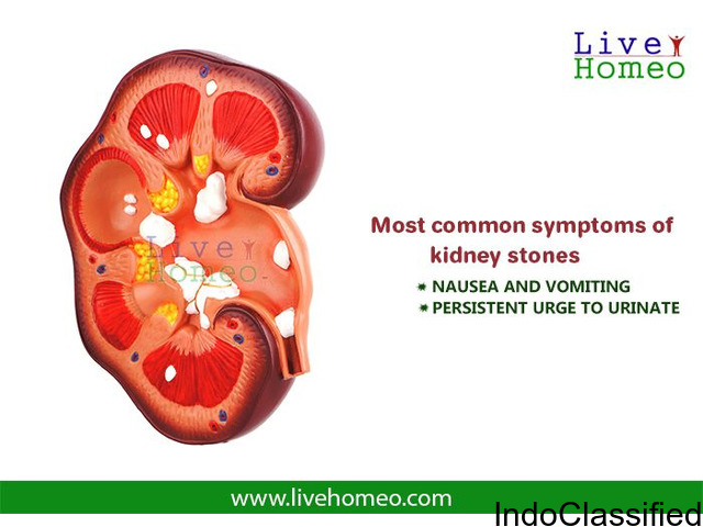 SAFE KIDNEY STONES TREATMENT IN HOMEOPATHY