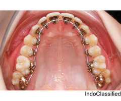 Now Achieve the Perfect Smile at the Best Lingual Braces Cost in India