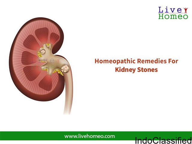 CURE YOUR KIDNEY STONES TREATMENT  THROUGH  HOMEOPATHY REMEDIES:
