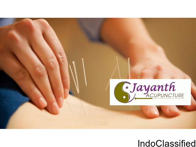 The Best Acupuncture Treatment in Chennai - Acupuncturist