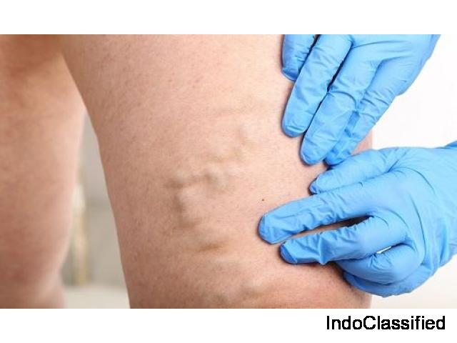 Doctor for Varicose Veins in Delhi | Lybrate