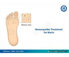 Get Rid Of Warts Safely With Homeopathy