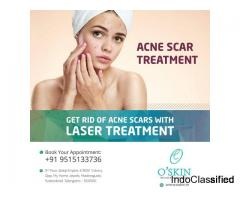Best Acne Scar Treatment In Hyderabad | O'Skin Clinic