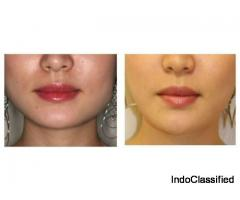 Botox Treatment to Increase the Skin Quality