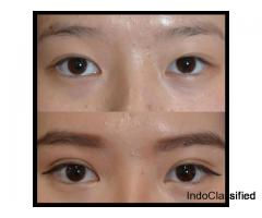 Asian eyelid surgery in Delhi and Gurgaon - Divine Cosmetic Surgery