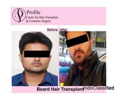 Experienced Doctor and Affordable Hair Transplant in India