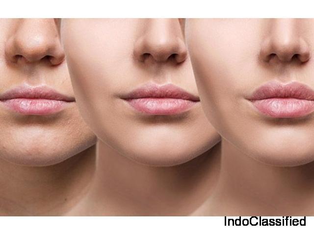 lip enhancement surgery in Delhi