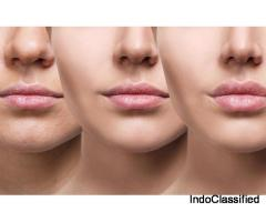 lip enhancement surgery in Delhi