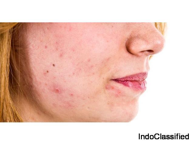 Delhi Laser Clinic - Best Dermatologist in Dwarka, Delhi