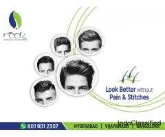 best hair clinic in vijayawada