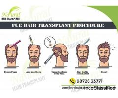 Hair Transplant Surgery in Chennai – Affordable Cost