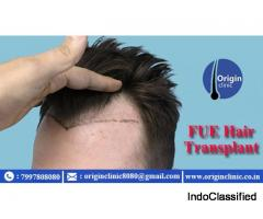 Hair Transplantation | Best Hair Transplant Doctors | Hair Transplantation in Hyderabad