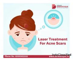 Acne Scars Treatment in Hyderabad