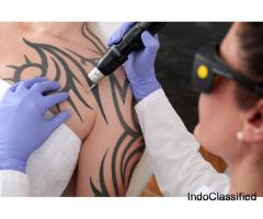 Tattoo Removal Treatment in Chandigarh
