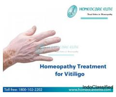 Homeopathy treatment for vitiligo In Hyderabad