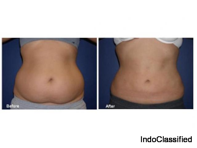 Get up to 50% Discount on Liposuction Surgery in Delhi