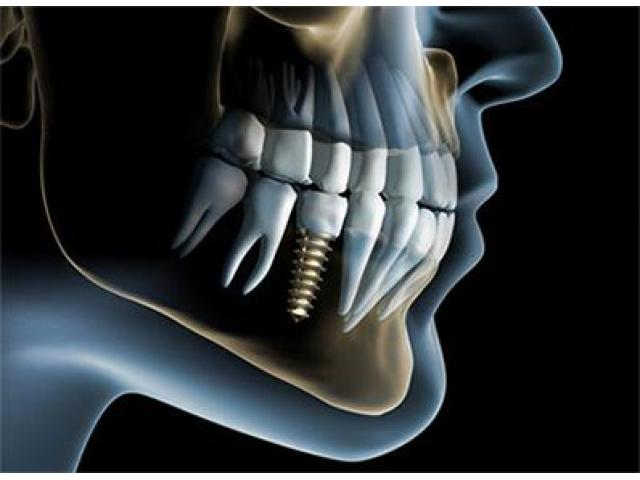 Dental Implants In Gurgaon - Punyam Dental Office