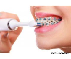 Braces A Medical Device To Align Cross And Overlapping Teeth.