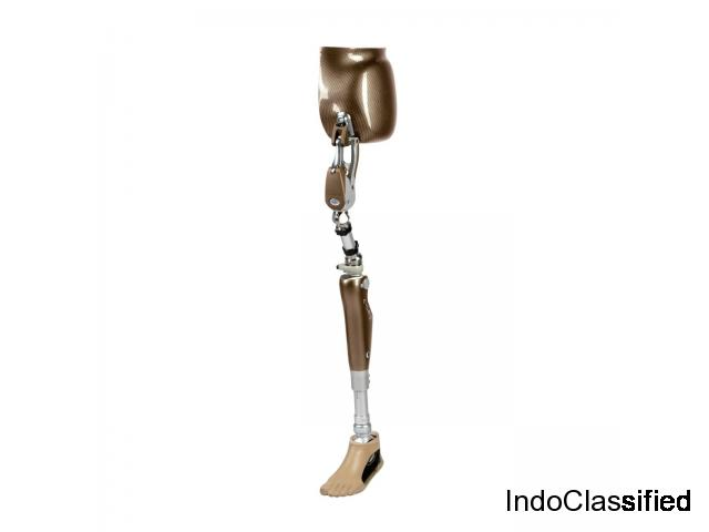 best artificial limbs clinic in panchkula