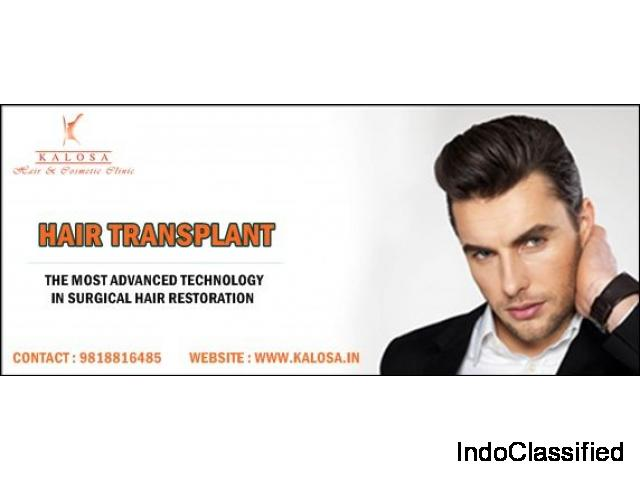 Best Hair Transplant Clinic in Gurgaon