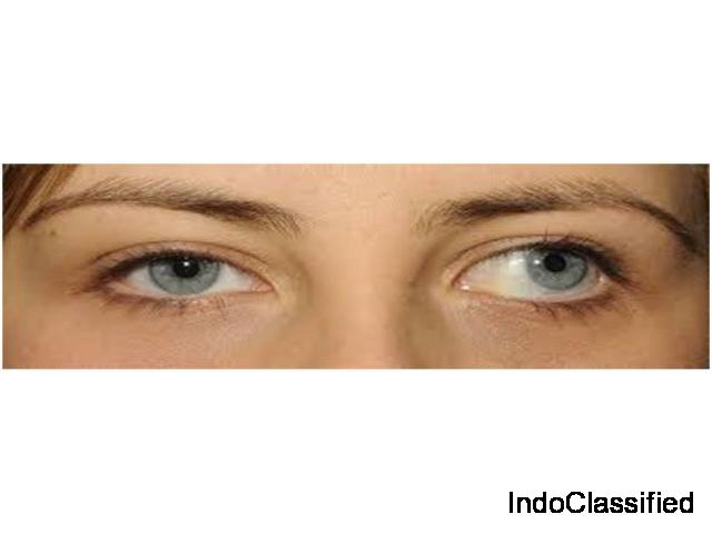 Treat Squint in Indore under the Guidance of Best Ophthalmologists