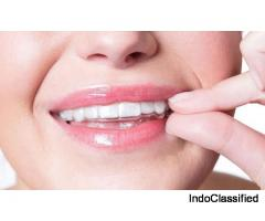 Get invisible aligners for beautiful teeth