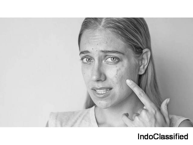 Acne Specialist Doctor in Delhi | Dr. Rajat Kandhari