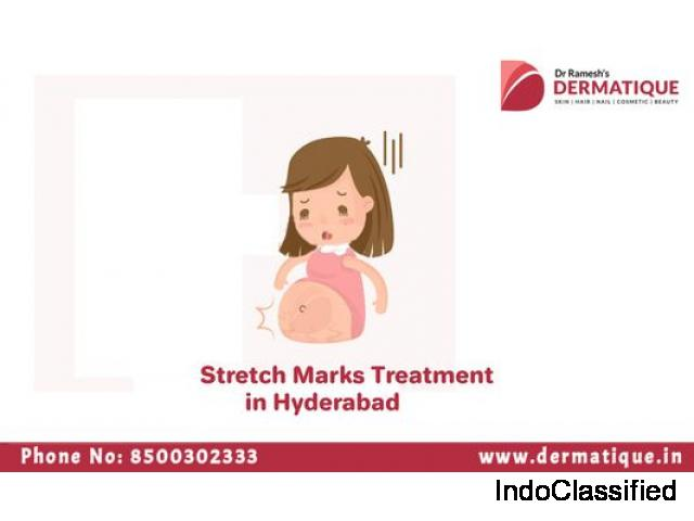 Eliminate Stretch marks problem in Banjara Hills