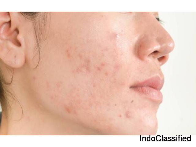 Acne Treatment in Gurgaon