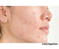 Acne Treatment in Gurgaon
