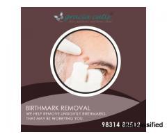 Birthmark Removal in Kolkata