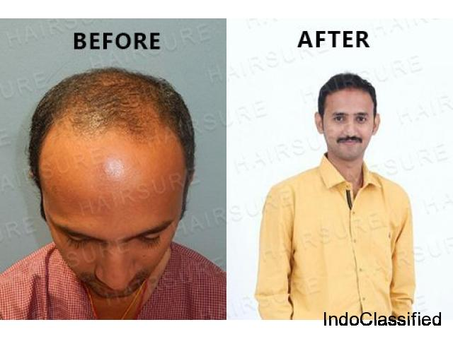 HairSure: Best Hair Transplant Clinic in Hyderabad